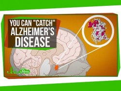 """You Can """"Catch"""" Alzheimer's Disease – YouTube"""