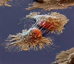 Cancer cells under an electron microscope