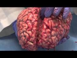 The Unfixed Brain – YouTube
