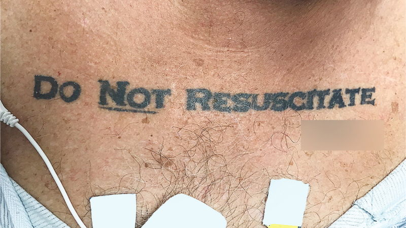 Unconscious Patient With 'Do Not Resuscitate' Tattoo Causes Ethical Conundrum at Hos ...