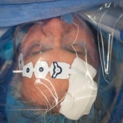 One man's desperate quest for a brutal appendix cancer surgery