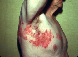 Shingles Vaccine is the Silver Lining of Turning 50   Shot of Prevention