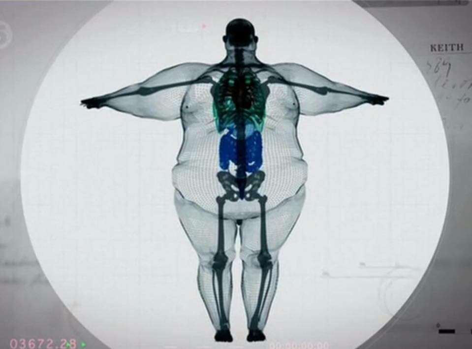 X Ray of a 320Kg  man