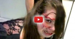 Disabled Teen Beaten Bloody By TSA Agents After Intrusive Search Confused and Frightened Her