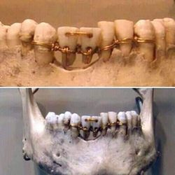 Dental work found on a 4,000- year old mummy in ancient Egypt