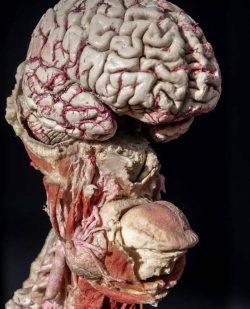 Human head minus skull and eyes