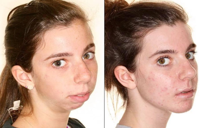 The power of plastic surgery