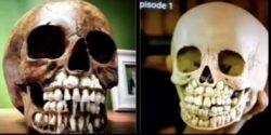 Toddler skulls are full of teeth